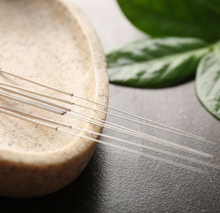 What is Acupuncture & how does it work?