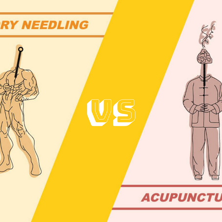 Dry Needling? Acupuncture? Which one should I get?