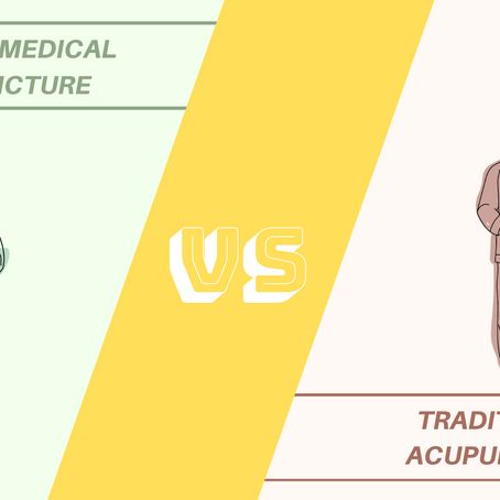 What is the difference between Western Medical Acupuncture & Chinese Acupuncture?