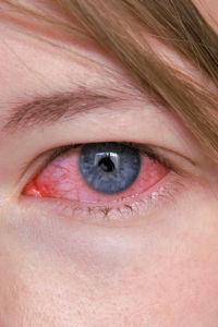 Bindehaut, Bindehautentzündung, rotes Auge, Augenentzündung, Auge