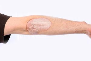 Neurodermitis, Ekzem, atopisches Ekzem, endogenes Ekzem, Dermatitis, Allergien
