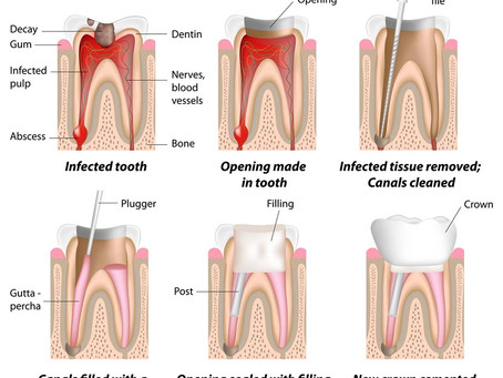 How is root canal treatment performed?