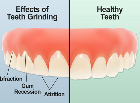 Bruxism or Clenching of teeth