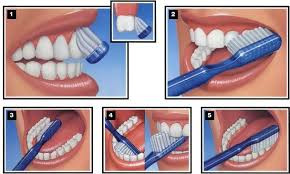 Correct Brushing Technique