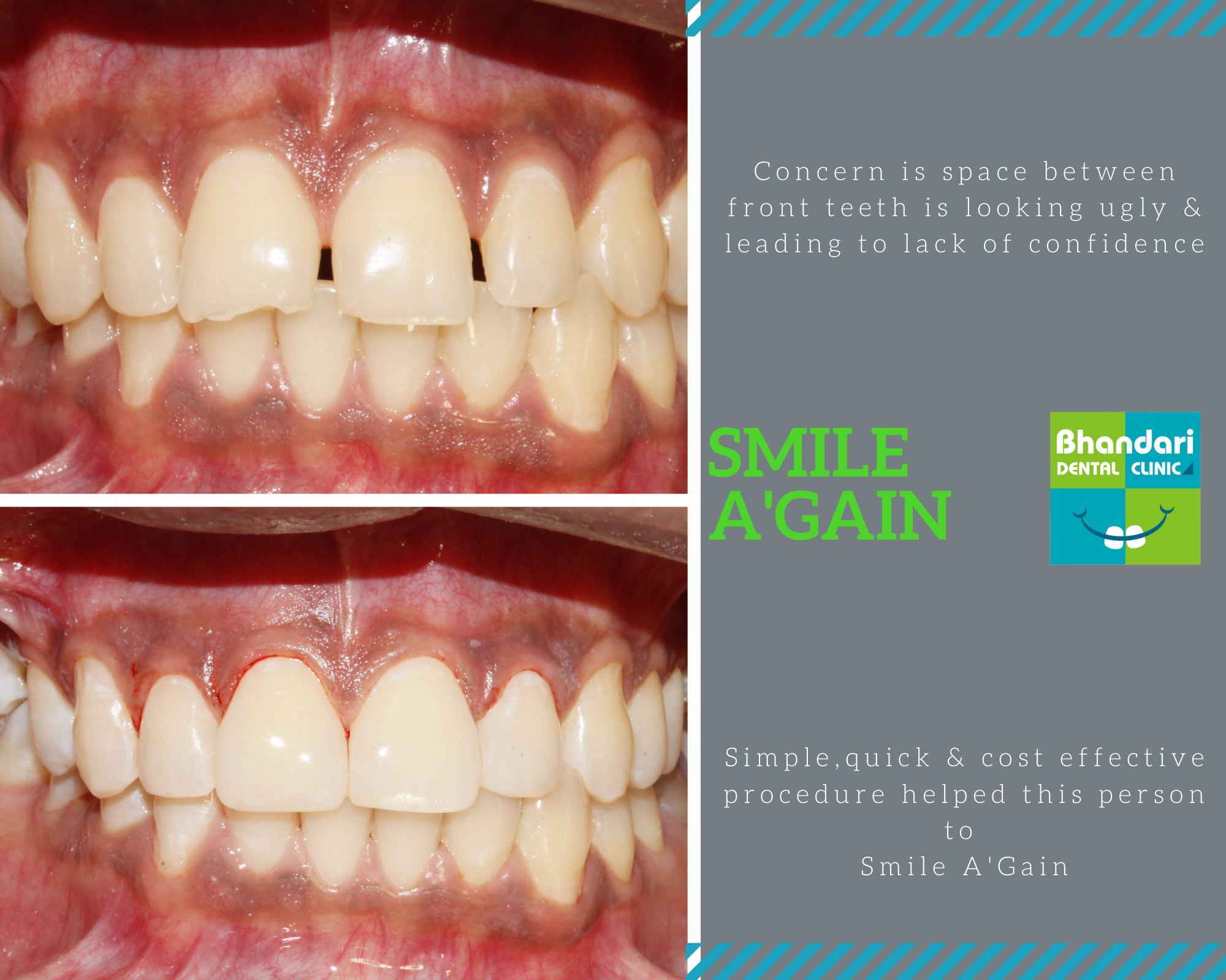 Smile makeover at Bhandari Dental clinic