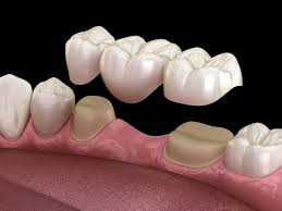 Dental Bridges to replace a missing tooth