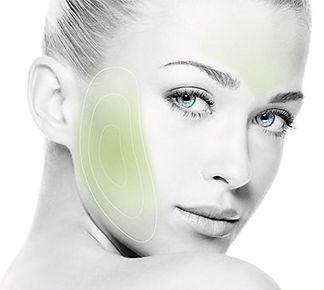 Rédure les rides et les cicatices d'acné, améliorer l'éclat du teint, réduire le double menton gâc aux radioféquences d la TCAR Winbackk Beauty Paris 16