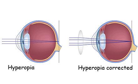 hyperopia vision farsightedness
