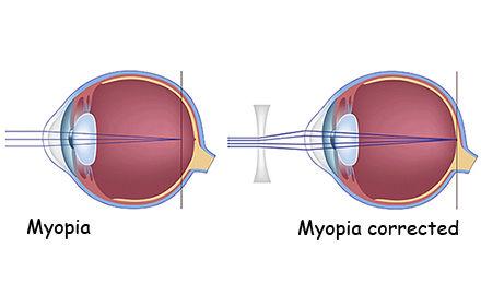 myopia vision nearsighted