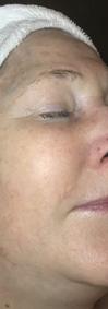 Before Facial.png