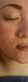 Before Signature Facial