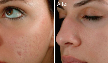 Skin Needling? What can it do?