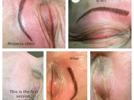 Eyebrows for an Alopecia Client