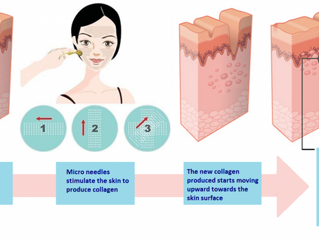 All you need to know about Collagen Induction Therapy