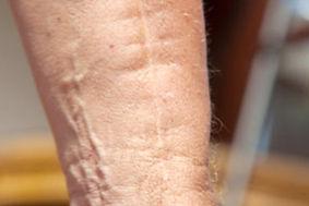 Narbe-Narbenbehandlung-Narbenentstörung-Narbenmassage-Bern-Operation-jucken-brennen-schmerzen.jpg