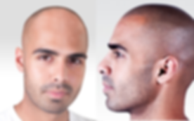 male-hair-loss-progression-300x300_edited.jpg