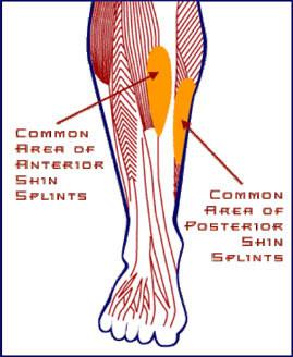 """""""Shin Splints"""""""