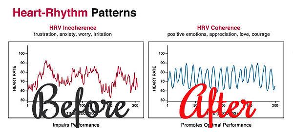 heart-rhythm-patterns_edited.jpg