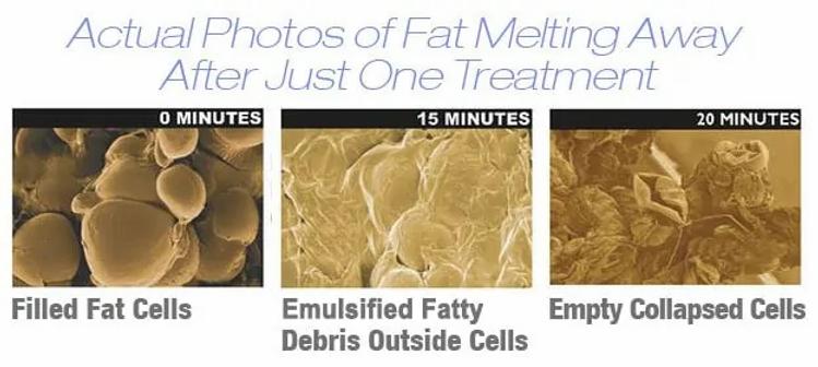 fat_melting02.webp