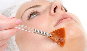 Peeling-quimicoOPPDFEJFIH.jpg