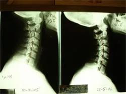 Spinal Correction