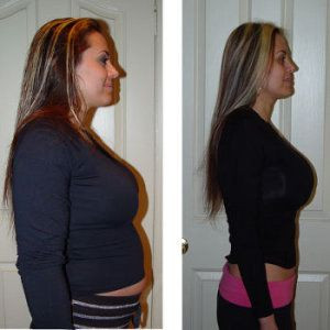 HCG diet - Before and After