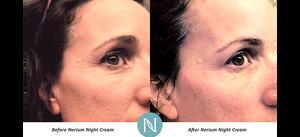 Nerium anti-aging cream