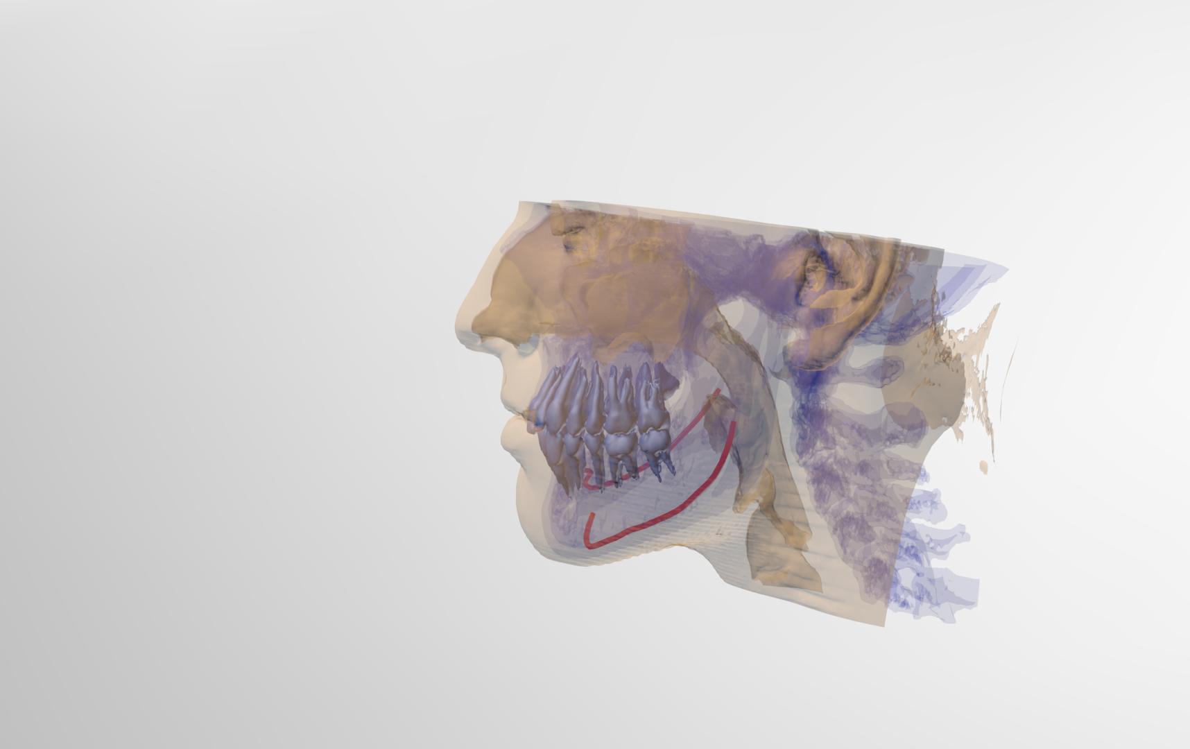 Reconstrução 3D nos mínimos detalhes