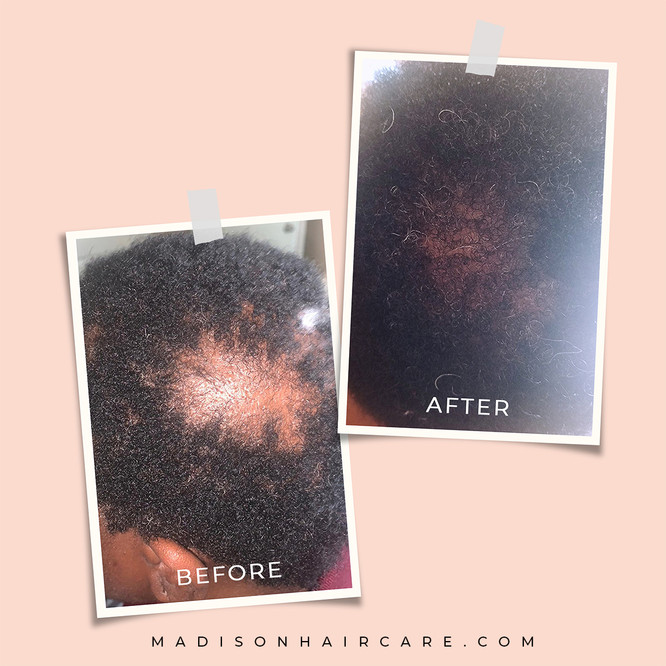 before-after-square-1.jpg