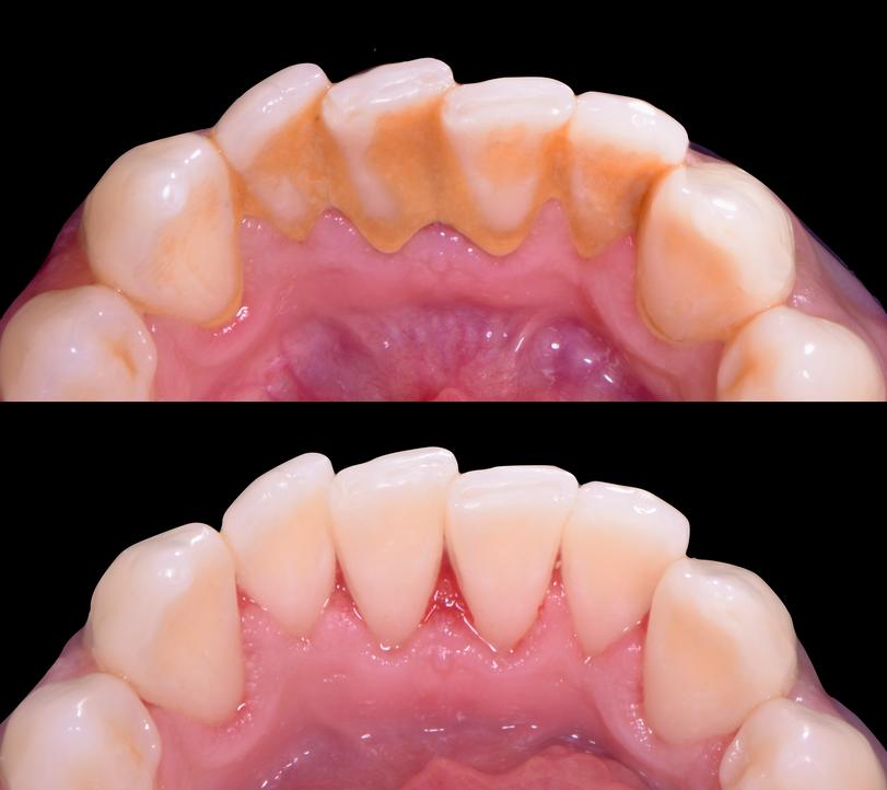 deep periodontal gum disease clean.png