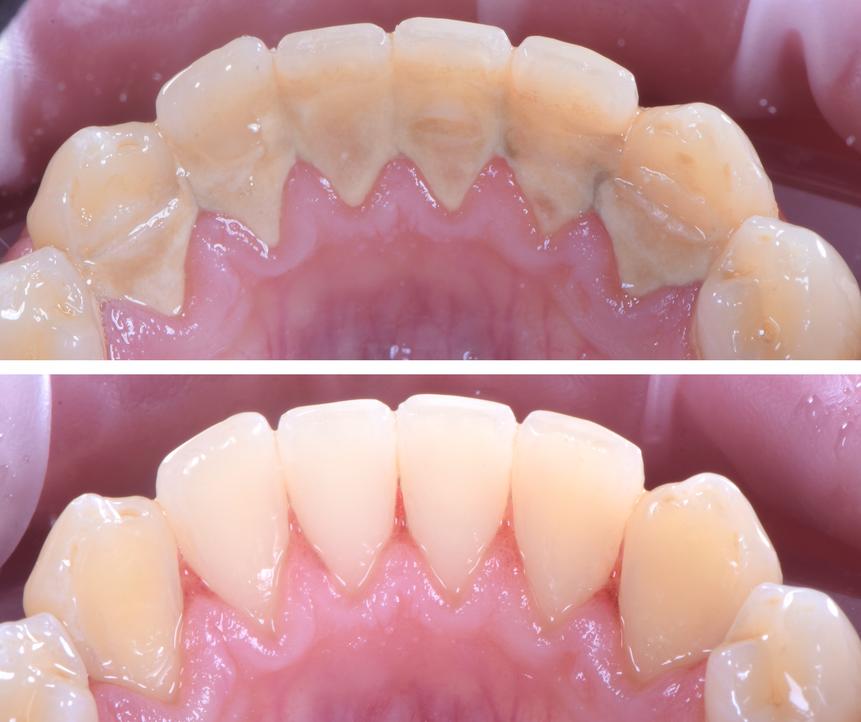 hygiene periontal gum disease treatment.