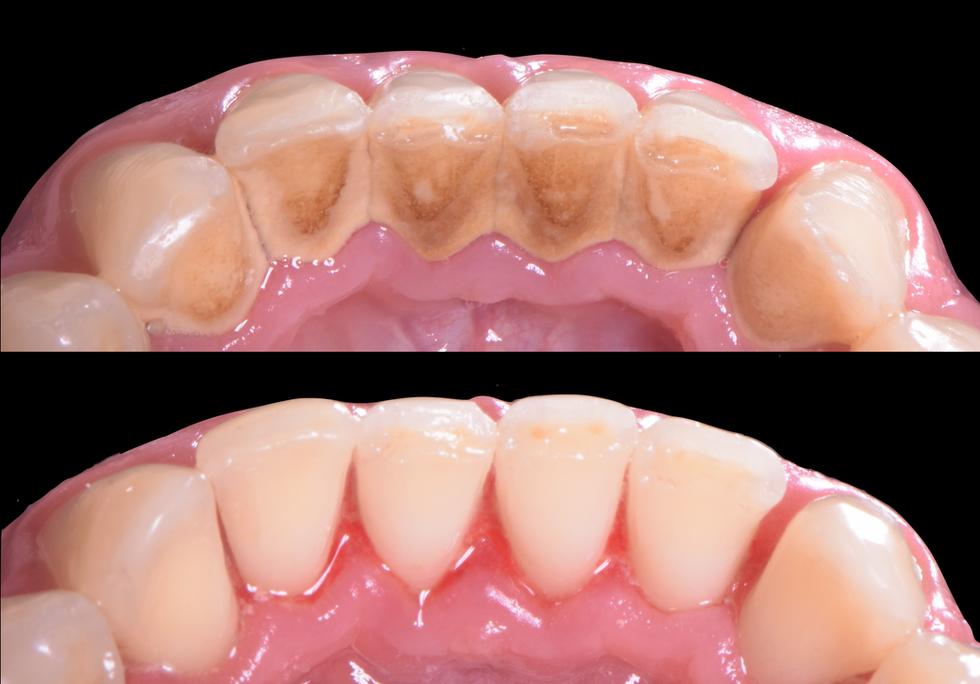 deep hygiene periodontal clean