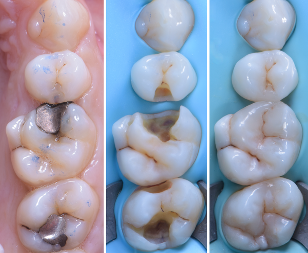 posterior composite bonding - replacing old decayed broken amalgam fillings with white com