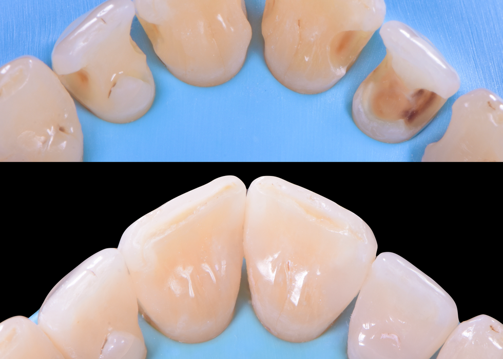 anterior composite bonding .png