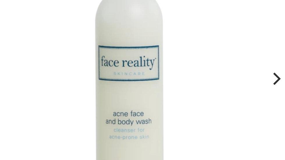 Ance wash - 6 oz