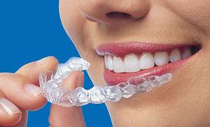 Clinique Dentaire Dre Annie Lefrancois,Dentisterie familliale, esthétique dentaire, cerec, urgence dentaire, invisaling, dentiste à joliette, équipe professionnelle, hautes technologies