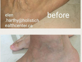 Varicose Veins and homeopathic treatment