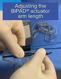 Adjusting the BiPAD® Actuator Arm Length