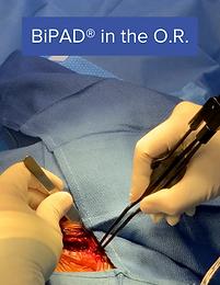 BiPAD® in the Operating Room