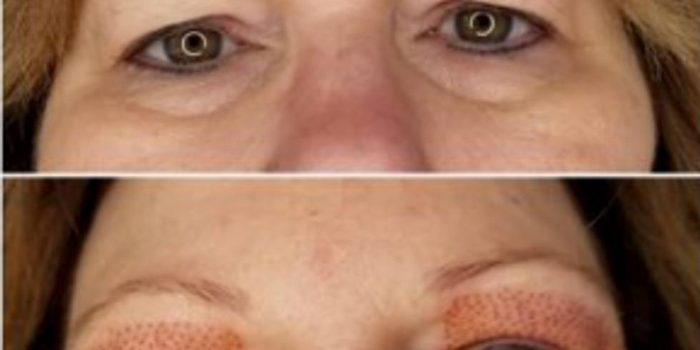 Plasma Pen Skin Tightening Course