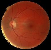 eyeball pic.png