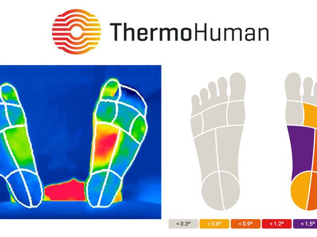 ThermoHuman