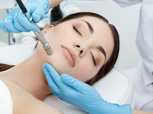 Microdermabrasion Add-On
