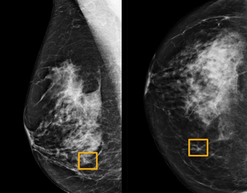 AI Outperforms Human Radiologists in Breast Cancer Screening