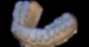 Exocad Bite Splint