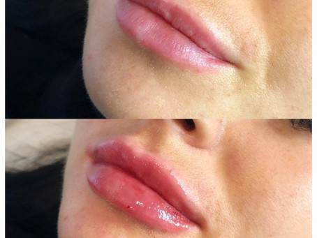 Not sure about Lip Filler? Here is everything you need to know and more.