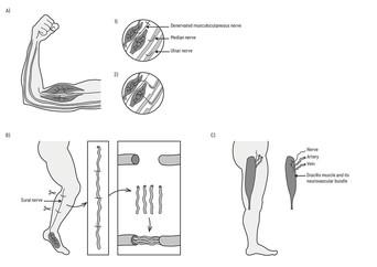 Reconstructive nerve proceedures