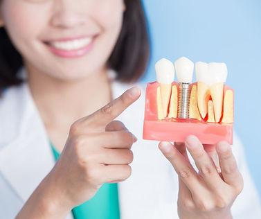 Dental Implants Ballarat.jpg