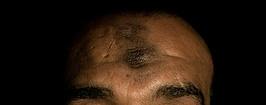 Mısırlı erkeklerin kafasındaki iz, zebiba