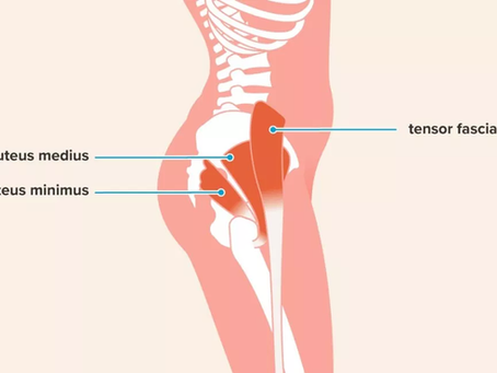 Gluteal tendinopathy- What is it and what you can do about.